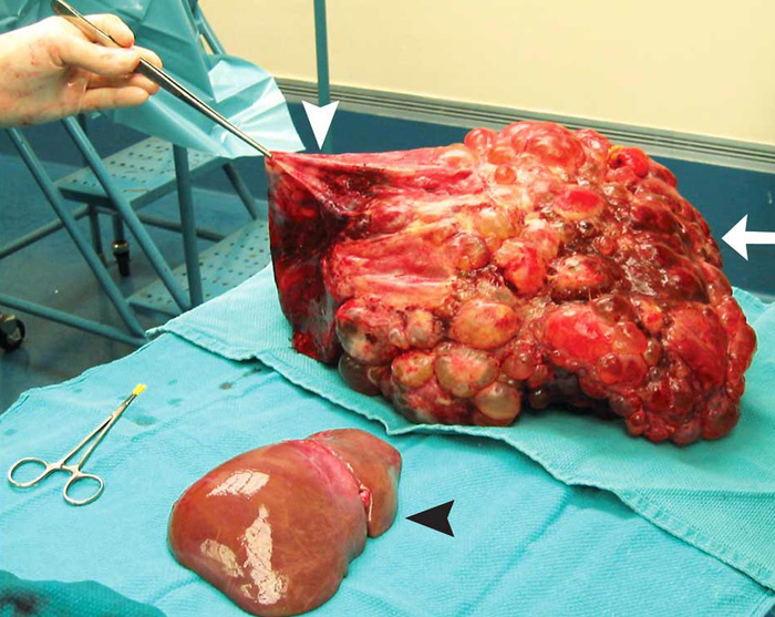 gallbladder surgery side effects after stopping birth control